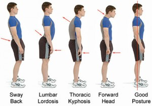 Poor posture that can be corrected with inversion treatmetns